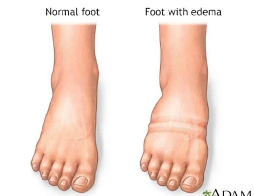 Normal and Swollen Foot
