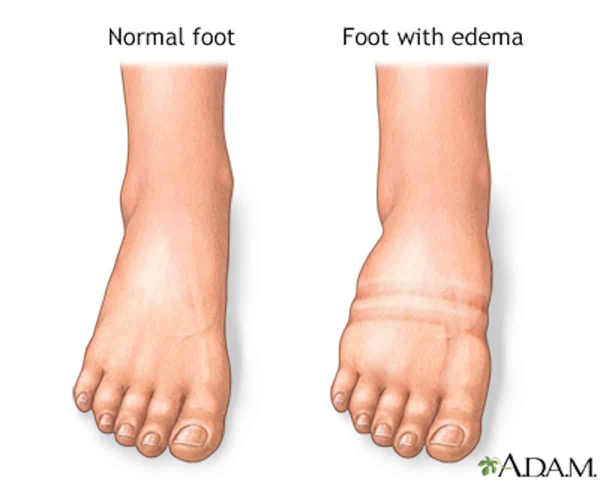Normal and Swollen Foot